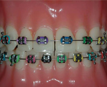 bling-teeth